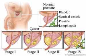 cara mengobati penyakit kanker prostat